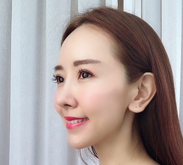 Review of Silhouette Threadlift at The Clifford Clinic