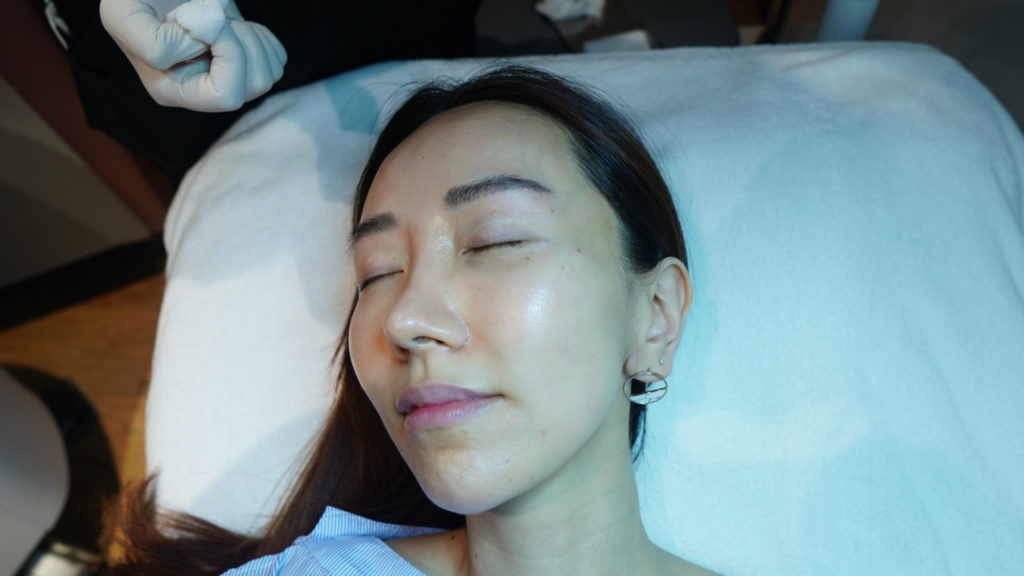 Review of Pico Laser for Removal of Pigmentation and Large Pores